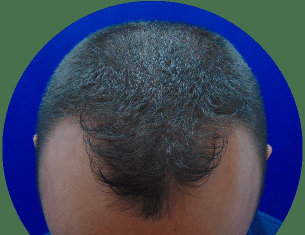 crecer-hair_tratamiento01